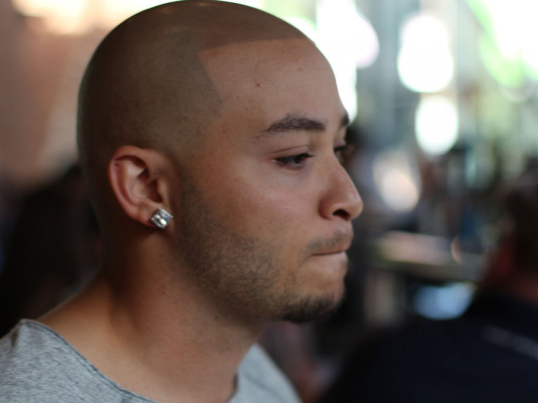 Scalp Micropigmentation   Taylor Electrolysis & Cosmetic Accents